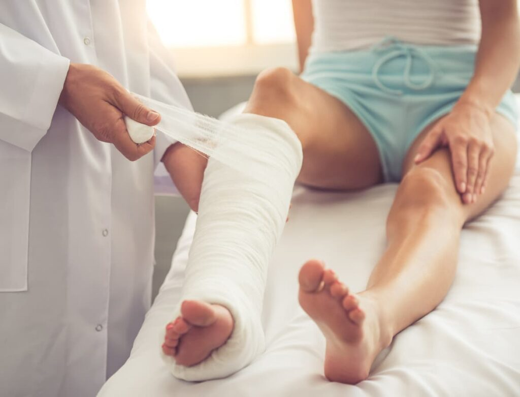 Luxação, mulher com a perna imobilizada